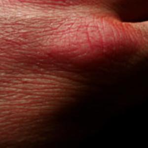 Psoriasis skin condition