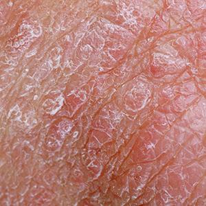 Eczema condition