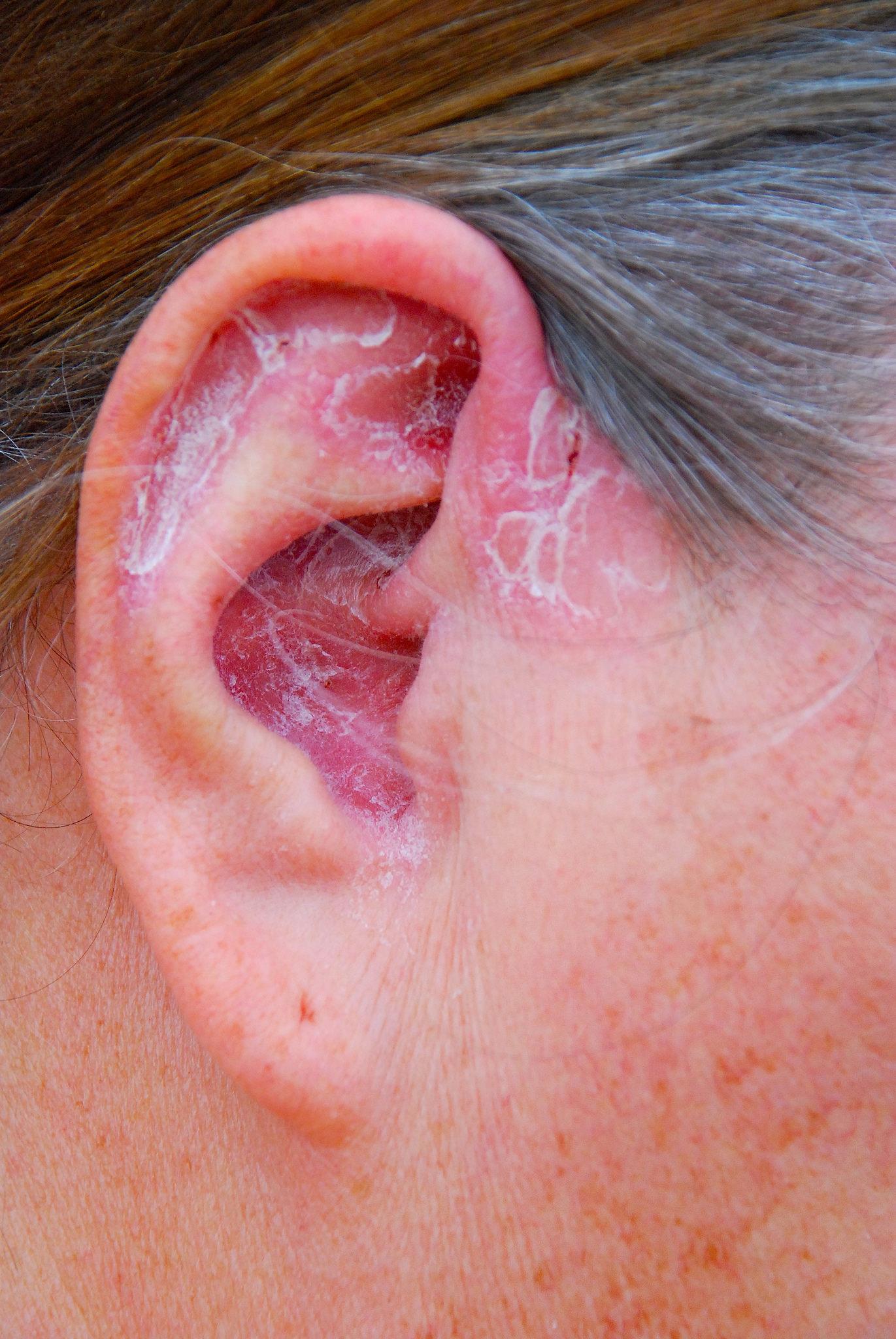 psoriasis on ear, skin problem