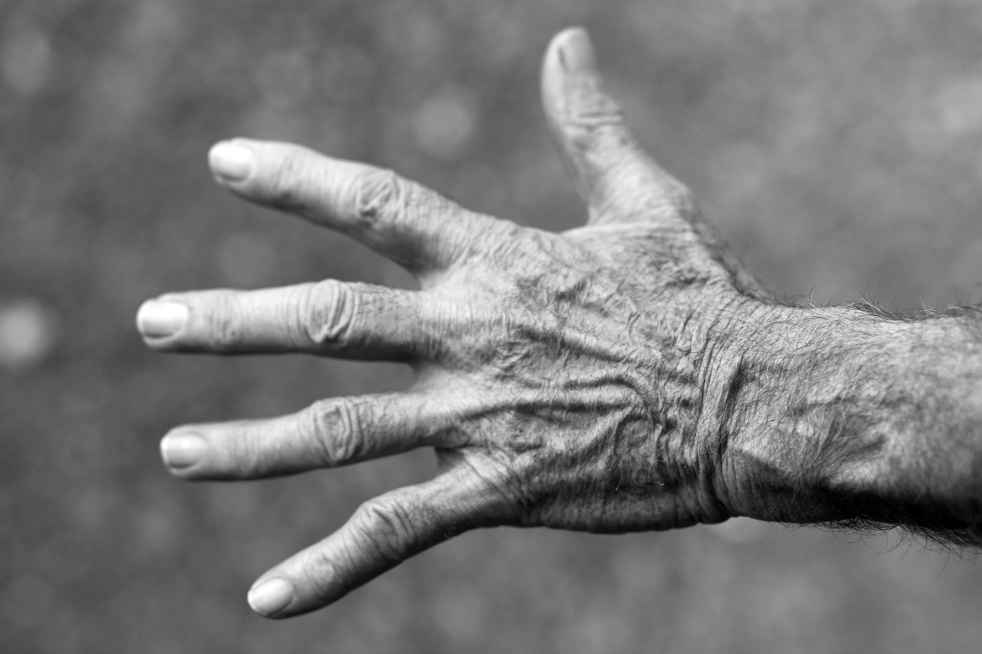 age, elderly, aging skin, hands
