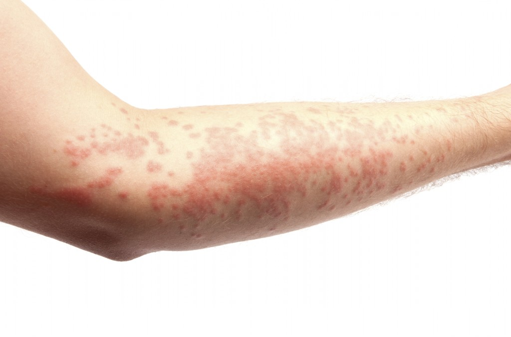 skin allergy, hives