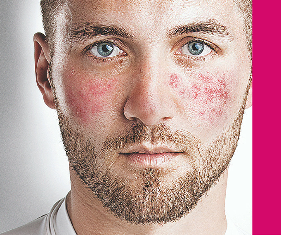 rosacea, pimples, redness
